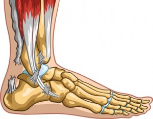 Vector medical illustration of an achilles tendon rupture.